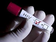 «Иркутский областной центр по профилактике и борьбе со СПИД и инфекционными заболеваниями»