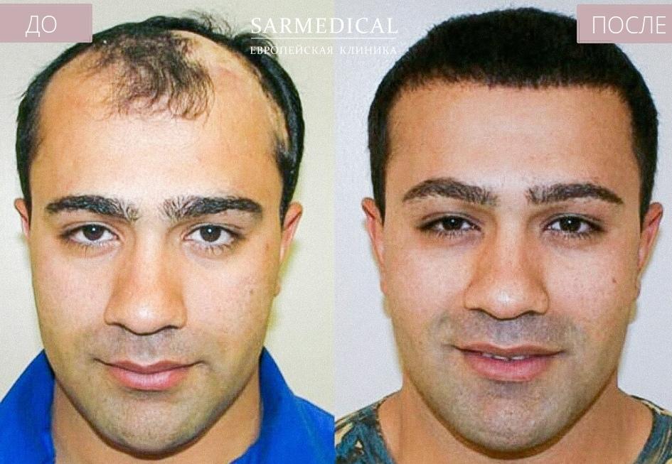 ассортименте магазина фото до и после пересадки волос постоянно проверяем
